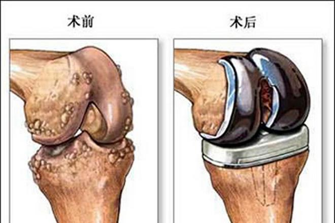 人工膝关节表面置换示意-骨伤科 3 梧州市中医医院